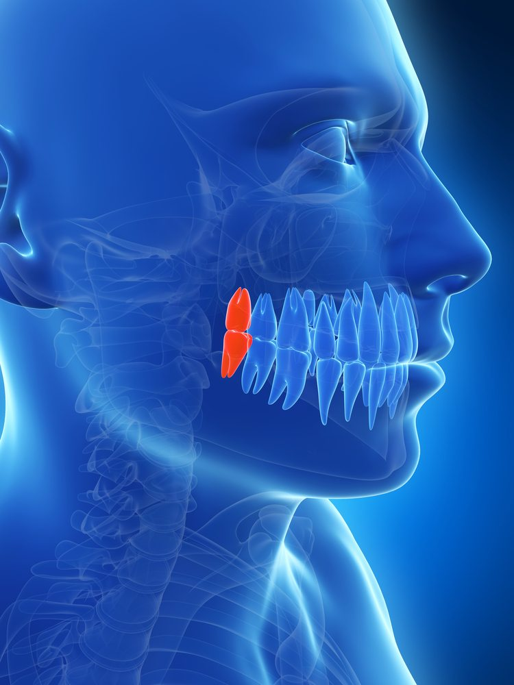 Wisdom Teeth Removal Stonebridge Dentalmckinney Tx Dentistry